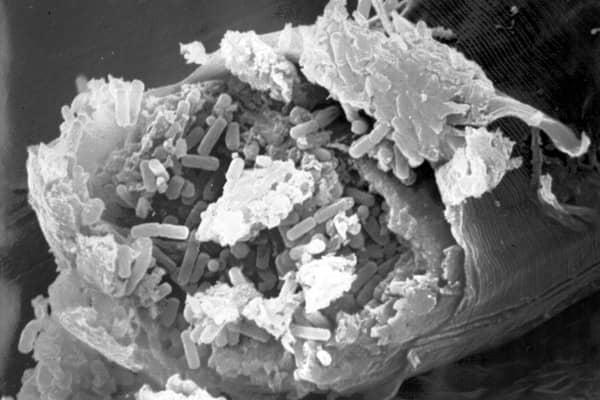 intestin infection par bacillus thuringiensis